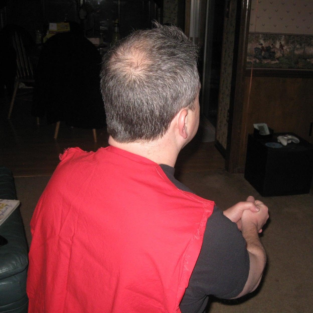 David's Bald Spot